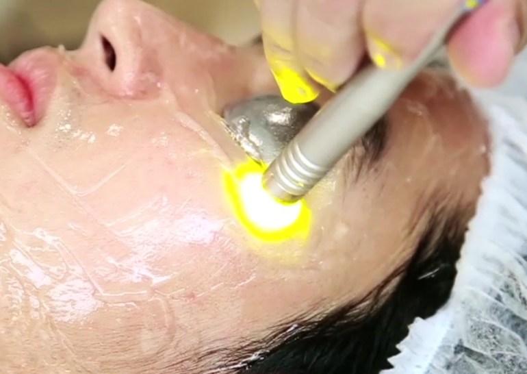 Dual Yellow laser