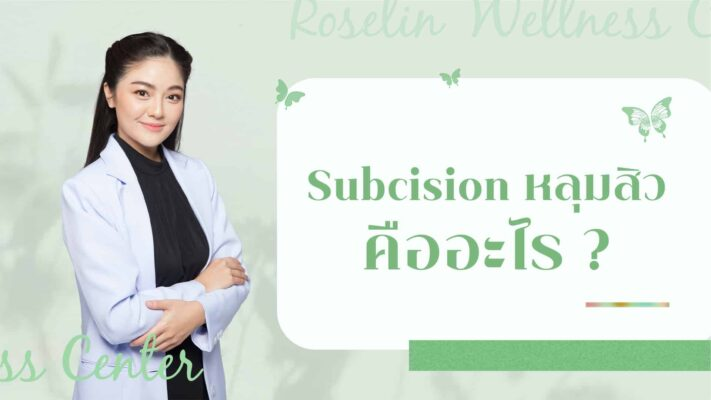 Subcision หลุมสิว